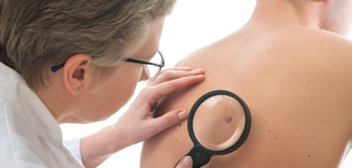 How to Detect Melanoma